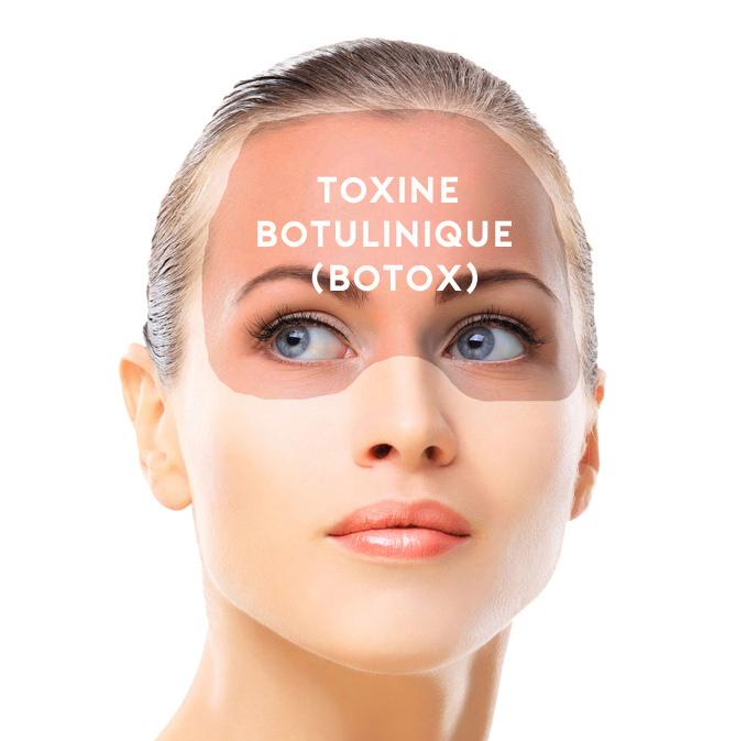 here is where u get botox