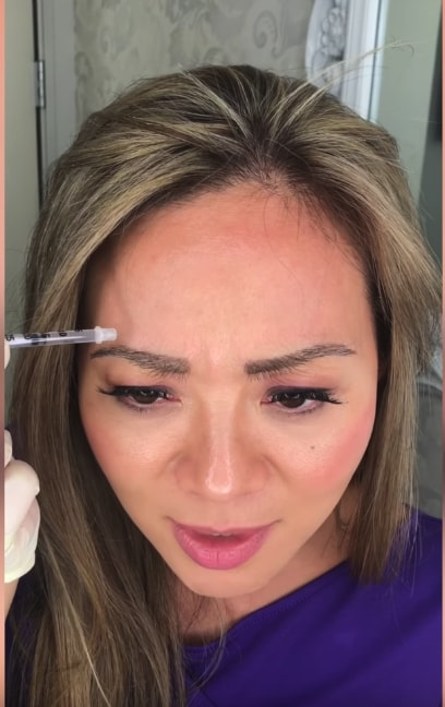 botox injection being self done by an asian lady