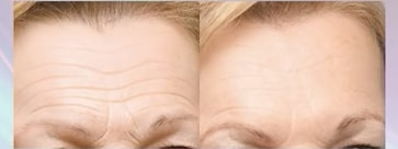 this is how botox works